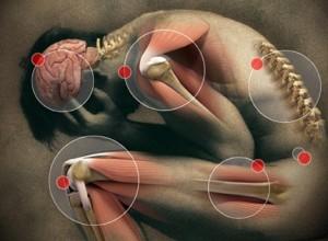 Dores musculares crónicas